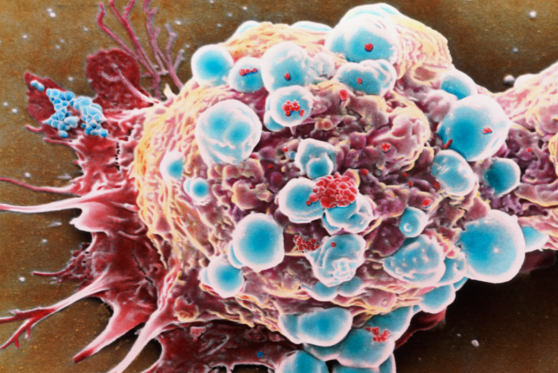 Coloured SEM of a breast cancer cell (Photo: SPL)