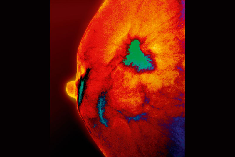 Coloured mammogram showing tumour in green (SPL)