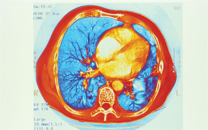 Chest physiotherapy will help to clear thickened secretions (orange branching) (Photograph: SPL)