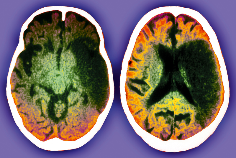 CT scans of 52 year old patient who has had a stroke (Photo: SPL)