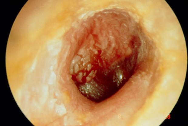 Otitis media is extremely common in patients with Turner syndrome (Photograph: Science Photo Library)