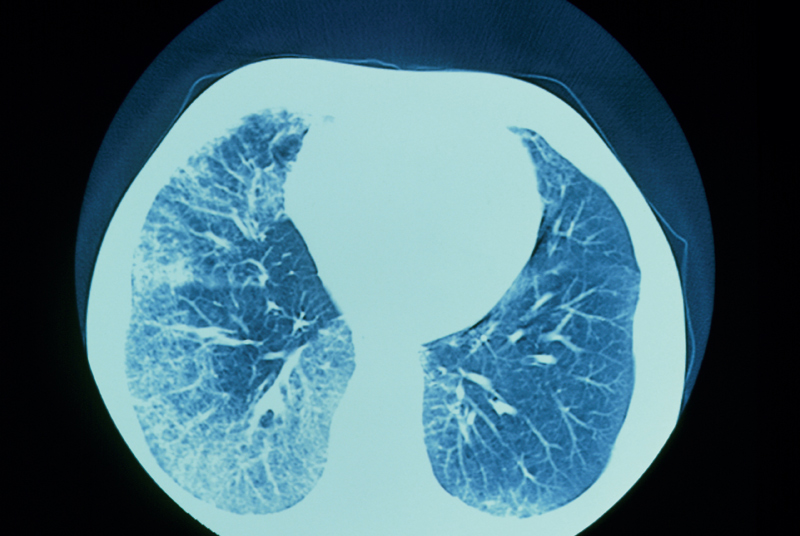 In RA, alvelolar structure of the lung can be altered as a result fibrosis (Photo: SPL)