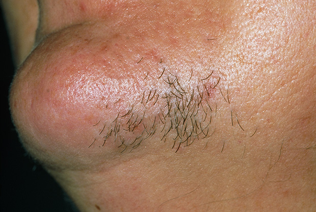 Hirsutism is more common in dark-haired women (Photo: Dr P Marazzi/Science Photo Library)