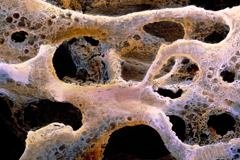 Osteoporosis: GPs want better access to screening services (photo: Science Photo Library)