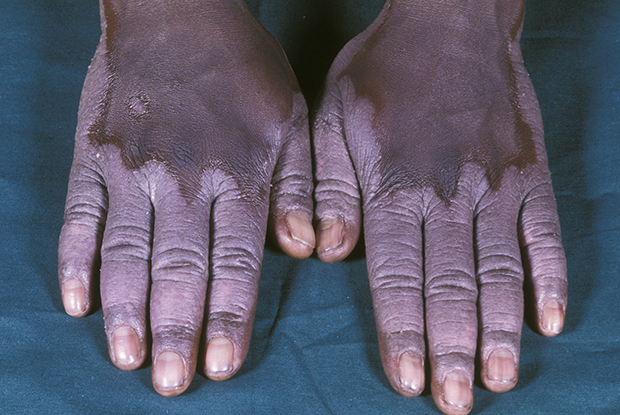 Psoriasis in black populations tends to resist treatment (Picture: Science Photo Library)