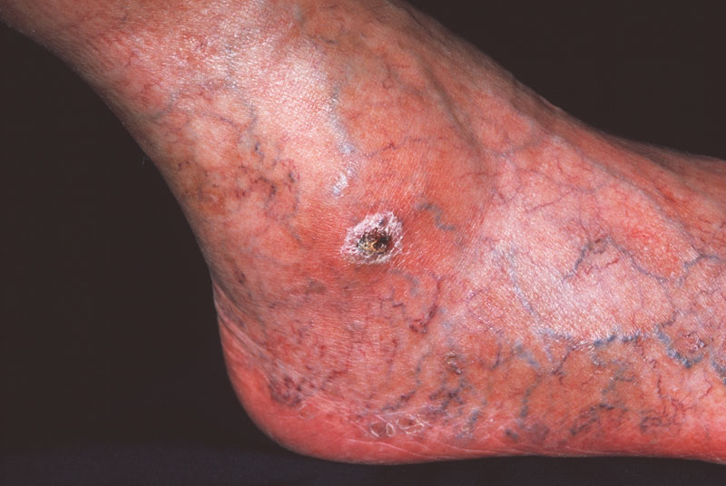 Arterial ulcer is a symptom of PVD, also indicated by the poor condition of the patient's veins