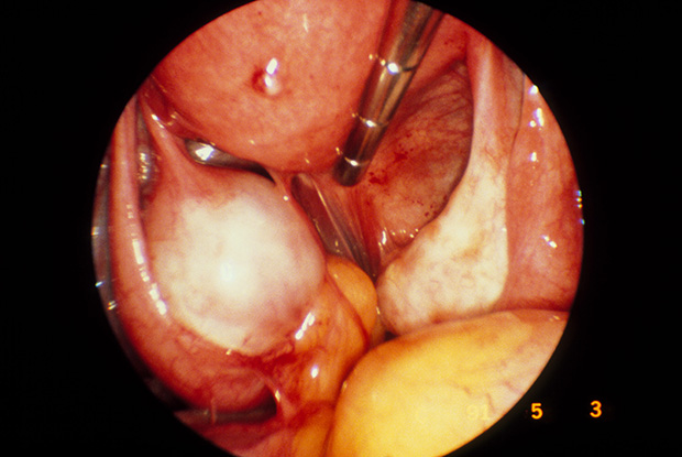Laparoscopic view showing ovarian cyst due to endometriosis (Photo: Science Photo Library)