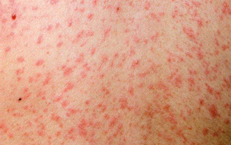 Measles rash is erythematous and maculopapular