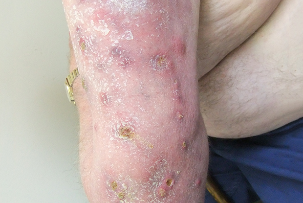Figure 1: cutaneous infection with Mycobacterium chelonae