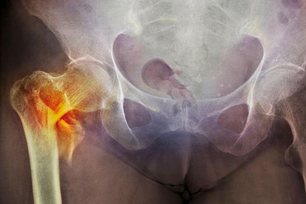 Fractured femur: identify at-risk groups to reduce the potential burden