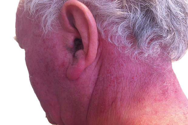 CAD, exposed site eczema with a clear demarcation between exposed and non-exposed sites (Image: Dr Adam Fityan)