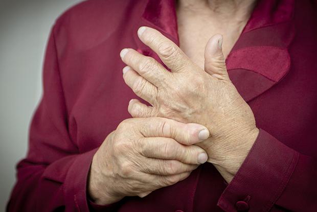Rheumatoid arthritis (Photo: iStock)