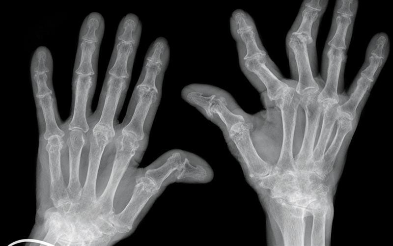 rheumatoid arthritis radiology)