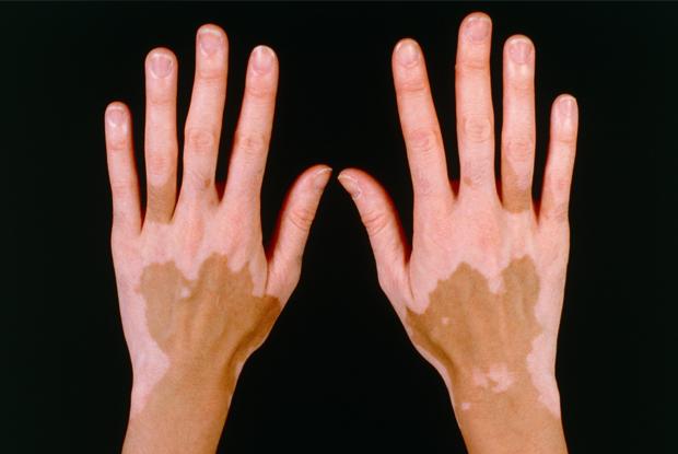 Management Of Patients With Vitiligo Gponline