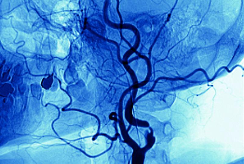 Stenosis in left carotid artery (SPL)