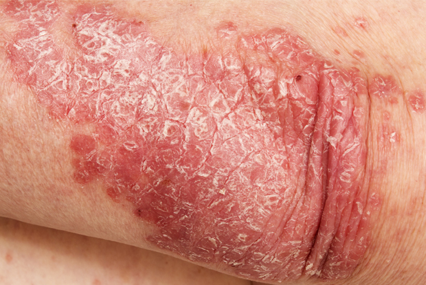 Psoriasis treatment modalities depend on disease severity. Credit: Milan Lipowski.