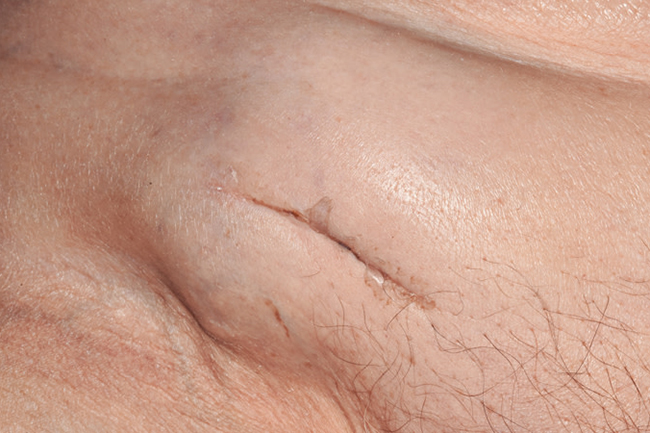 Lyphmadenopathy in the groin may be sign of malignancy (Photo: Dr P Marazzi/Science Photo Library)