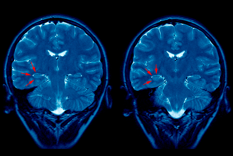 A brain MRI of an epilepsy patient: researchers called for GPSI-led services to plug gaps in care (Photo: SPL)