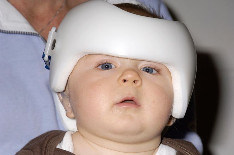 Helmets may be no better then natural resolution, researchers say (Photo: SPL)