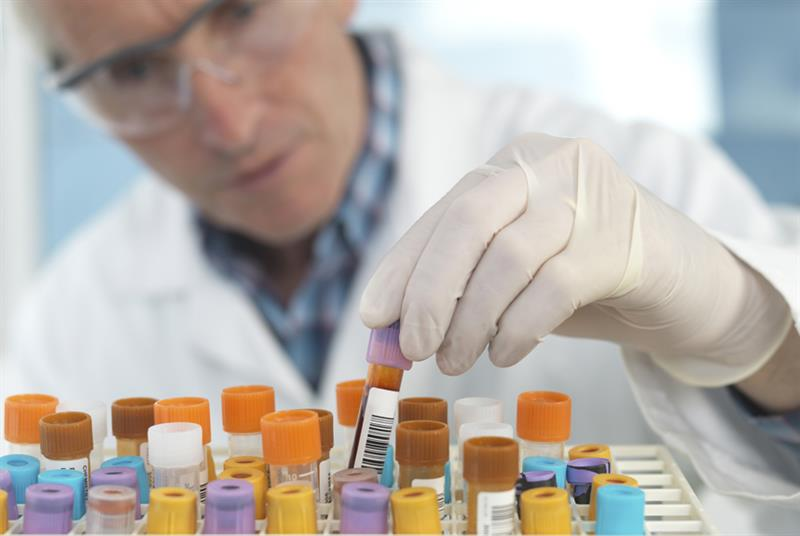 Laboratory capacity affected (Photo: Westend61/Getty Images)