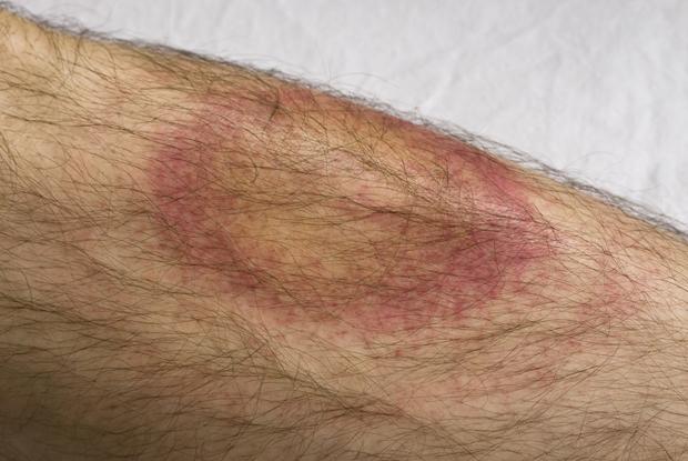 Bull's eye rash triggered by Lyme disease (Photo: iStock)