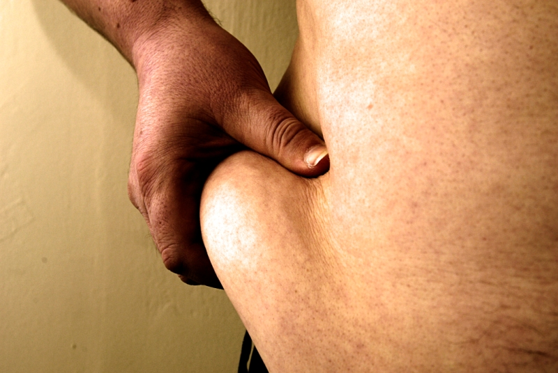 Obesity: NICE says more people with diabetes should have surgery (Photo: Jason Heath Lancy)