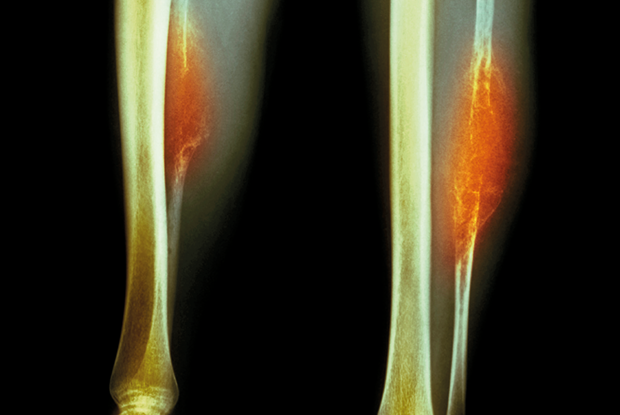 Coloured X-ray showing a front and side view of Ewing's sarcoma in the left fibula (Photo: Science Photo Library)