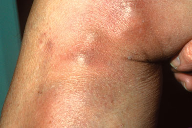 Phlebitis: infalmmed vein leads to tender lump surronded by erythema