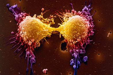 New treatments have helped cut deaths from prostate cancer. Pictured are dividing prostate cancer cells (Photo: SPL)