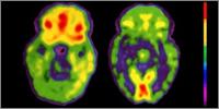 PET scans of schizophrenia