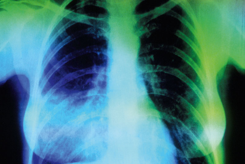 Coloured X-ray showing lobar pneumonia, as a possible cause of RTI (SPL)