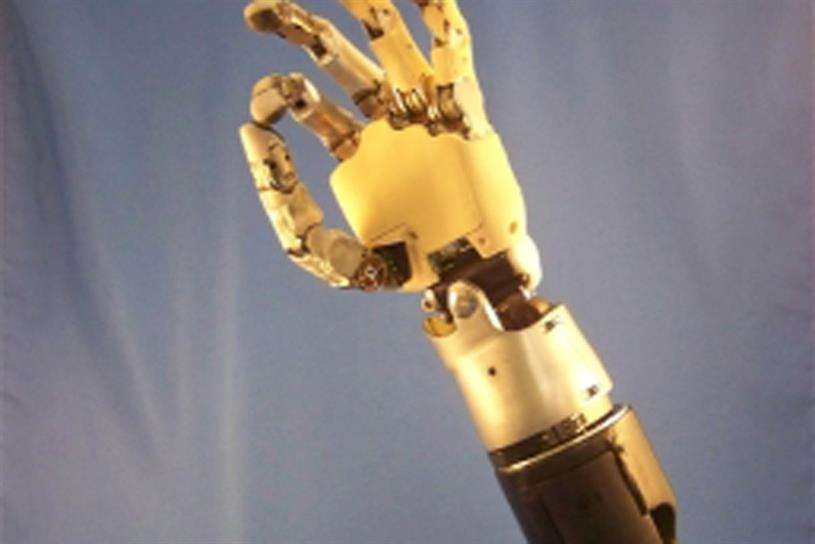 Prosthetics: what can we learn from scientific concepts?