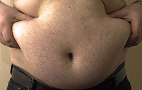 Obesity: rates have tripled since the 1980s