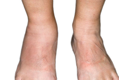 Up to 30% of people with psoriasis develop psoriatic arthritis