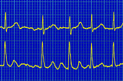 During atrial fibrillation, blood tends to pool in the atria – increasing the risk of thrombosis and stroke