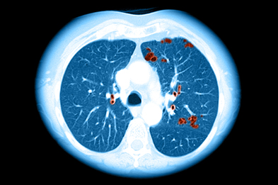 Cross sectional CT image of the chest in a person who smokes, showing changes typical of emphysema - a form of COPD.