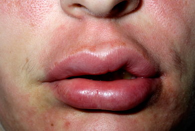 The angioedema treatment, Firazyr (icatibant acetate), can be self-administered at home | SCIENCE PHOTO LIBRARY