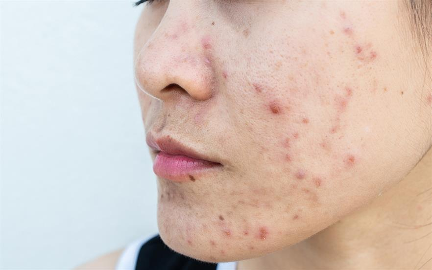 Though the type and severity of acne can vary, evidence suggests that any form of acne can cause a person to experience psychological distress. | GETTY IMAGES