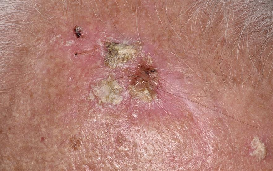 Post-marketing reports of various types of skin cancer in patients using ingenol mebutate gel have been received by the MHRA. | DR P. MARAZZI/SCIENCE PHOTO LIBRARY
