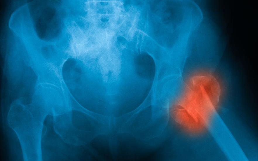 Previous research looking at the impact of steroids on bone health has proved inconclusive. | GETTY IMAGES