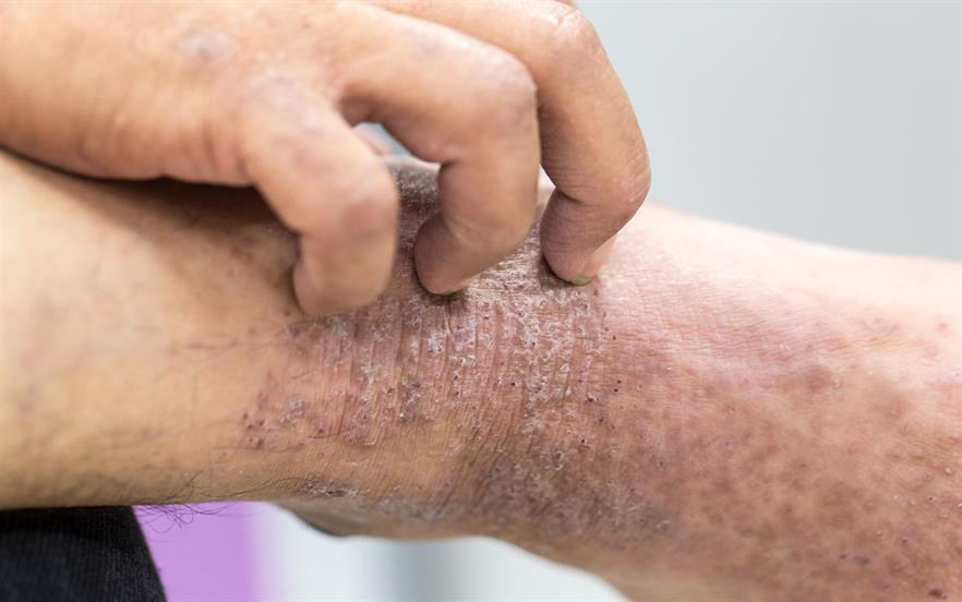 Baricitinib improved clinical signs and symptoms in patients with moderate‐to‐severe atopic dermatitis.   GETTY IMAGES