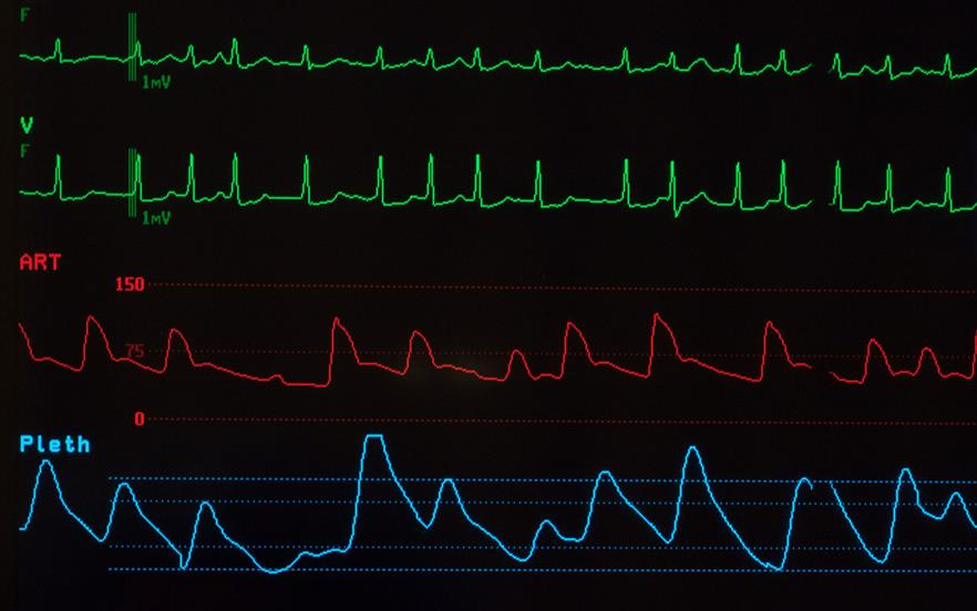 Untreated atrial fibrillation is thought to be responsible for approximately 20% of all strokes. | GETTY IMAGES