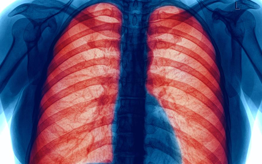 Eosinophilia is associated with worsening asthma severity and decreased lung function, and increased exacerbation frequency. | iStock