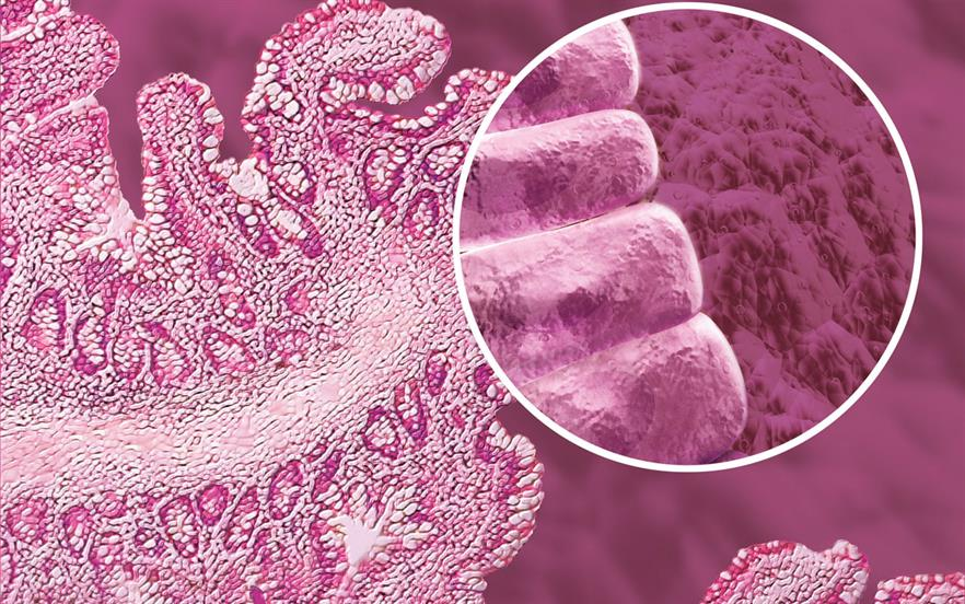 IBS mostly affects people aged 20-30 years and is twice as commen in women as in men. | SCIENCE PHOTO LIBRARY