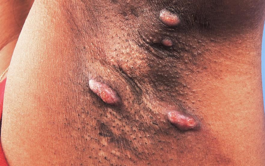 Hidradenitis suppurativa is a painful condition that can dramatically affect patients' psychological wellbeing and quality of life. | SCIENCE PHOTO LIBRARY