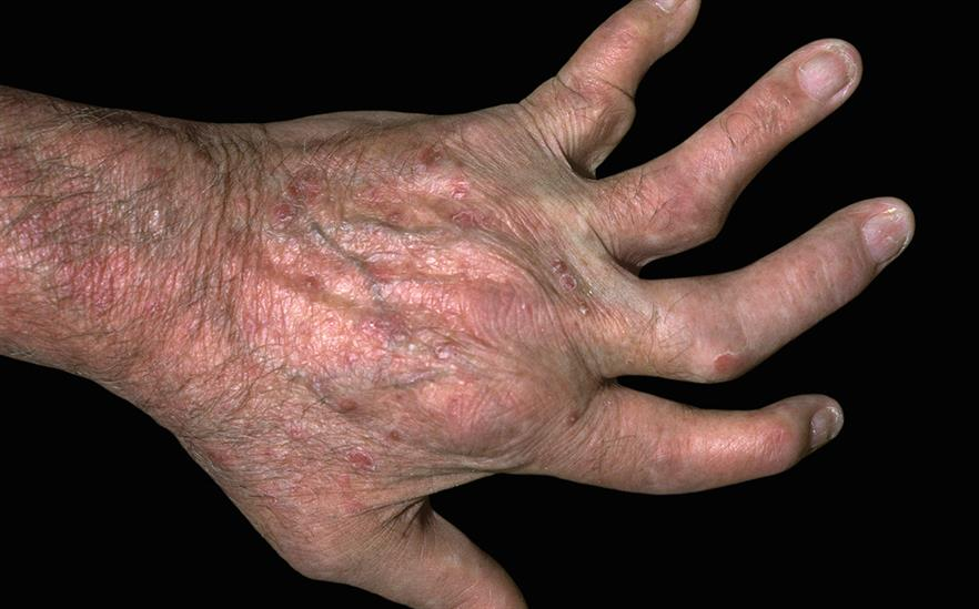 Apremilast is an oral treatment for psoriasis and psoriatic arthritis. | SCIENCE PHOTO LIBRARY