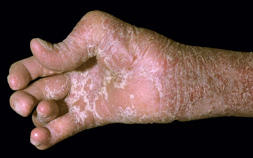 Certolizumab pegol and secukinumab are recommended by NICE as options for psoriatic arthritis. | SCIENCE PHOTO LIBRARY