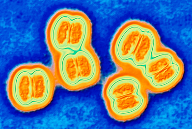 Disease caused by Neisseria meningitidis serogroup B is an important unmet public health challenge | SCIENCE PHOTO LIBRARY