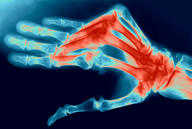 Other JAK inhibitors are also in development for rheumatoid arthritis | SCIENCE PHOTO LIBRARY