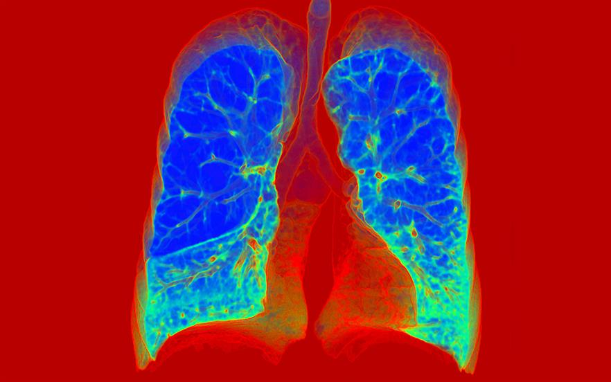 Roflumilast provides an alternative approach to reducing the occurrence of exacerbations in patients with severe COPD. | SCIENCE PHOTO LIBRARY